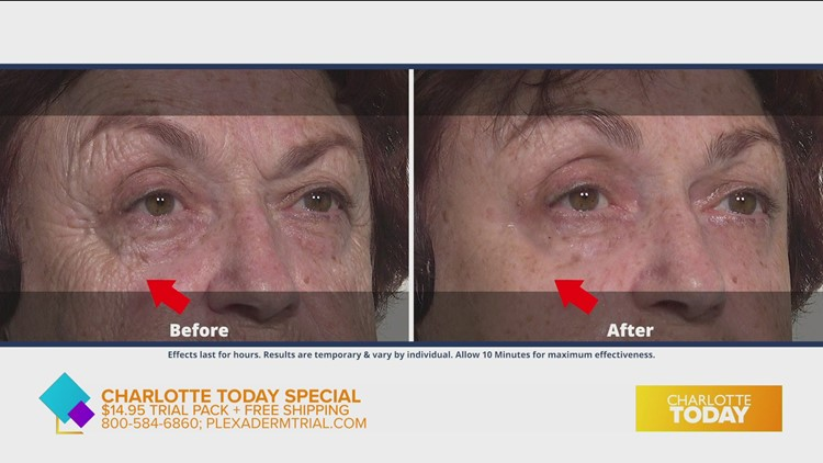 Take the 10 minute challenge to remove under-eye-bags