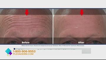 Banish wrinkles with Plexaderm