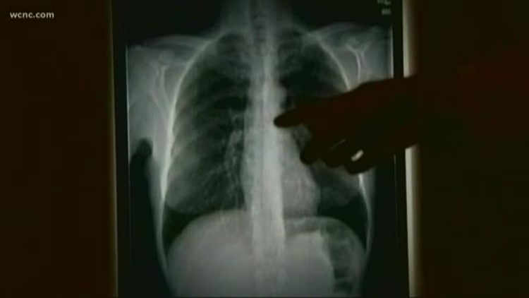 Levine Cancer Institute spreads awareness about lung cancer