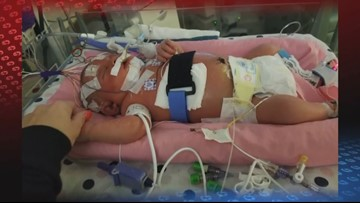 Newborn baby dies from disease caused by kiss | wcnc com