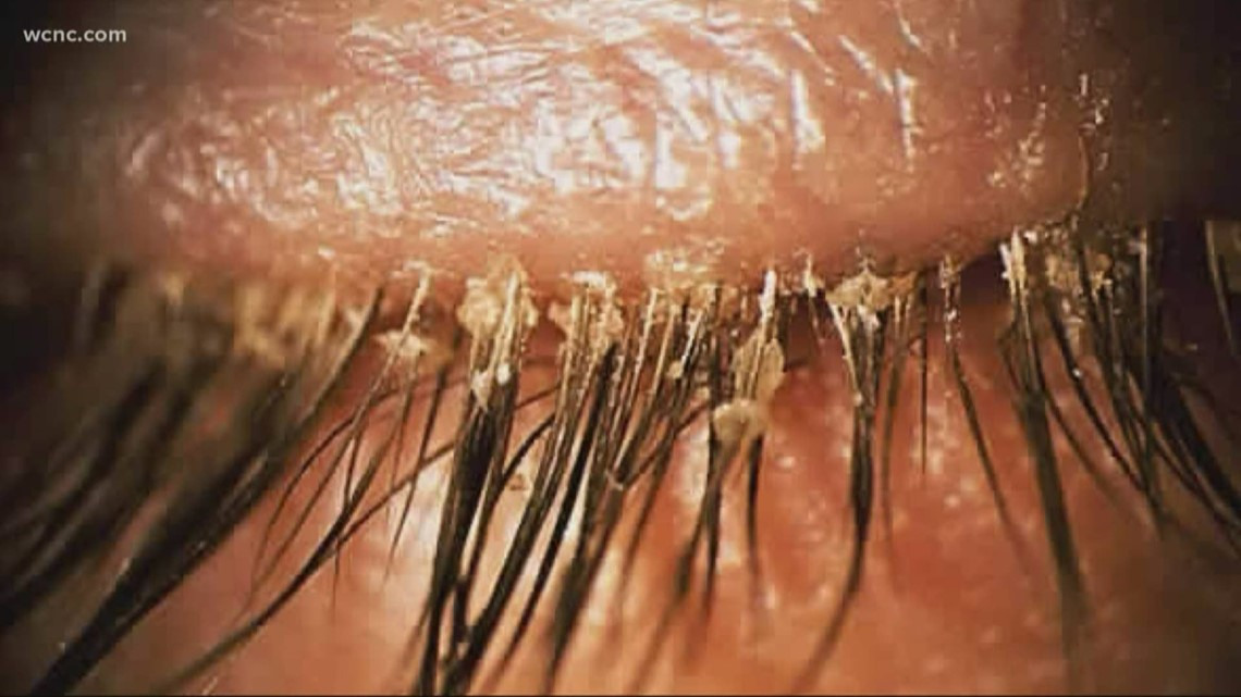 Healthcare Officials Warn About Eyelash Extension Mites Wcnc Com