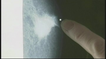 Men have lower breast cancer survival rate