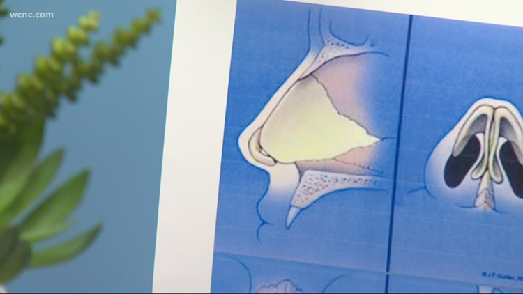How to treat nasal obstruction