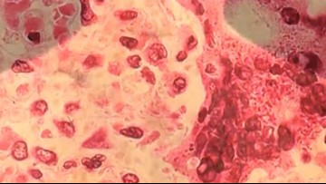 Three confirmed measles cases in South Carolina